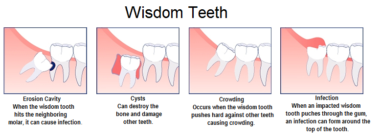 Bahamas Dental Care - Wisdom Teeth