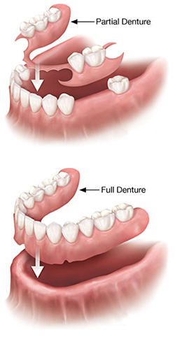 Bahamas Dentistry Dentures