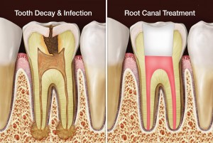 Bahamas Dental Care - Root Canal