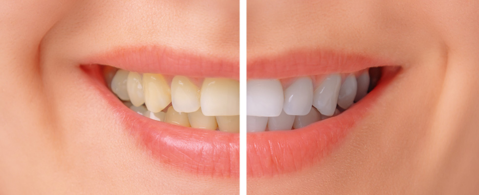 Bahamas Dental Care Teeth Bleaching
