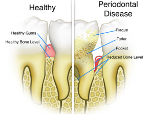 Periodontal Disease - Rainbow Dental Bahamas