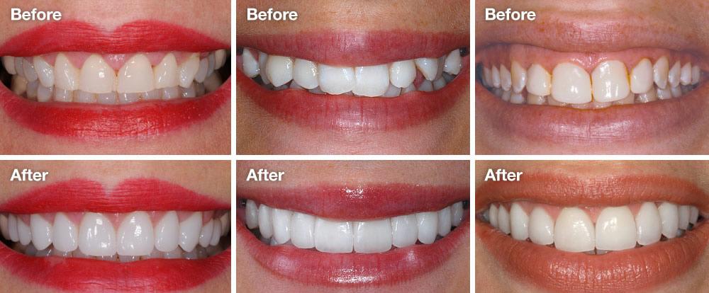 Bahamas Dental Veneers